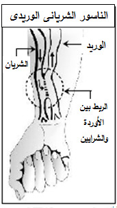 غسيل الكلى in Arabic Language