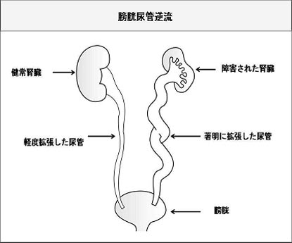 Kidney in Japanese